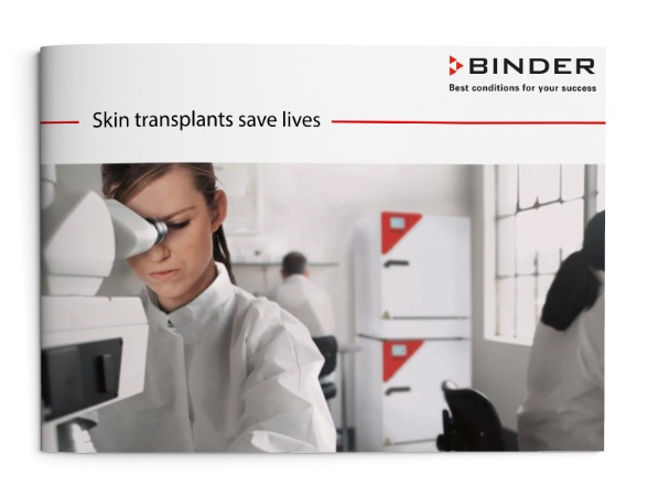 Skin transplants