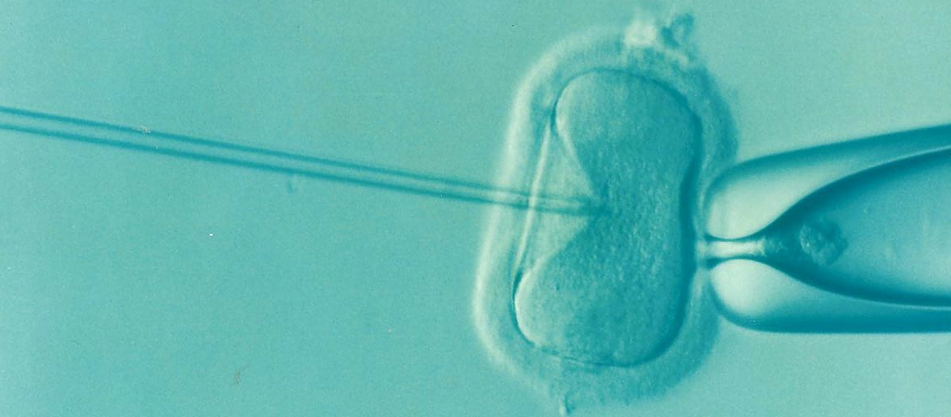 CO2 Inkubator in vitro fertilisation